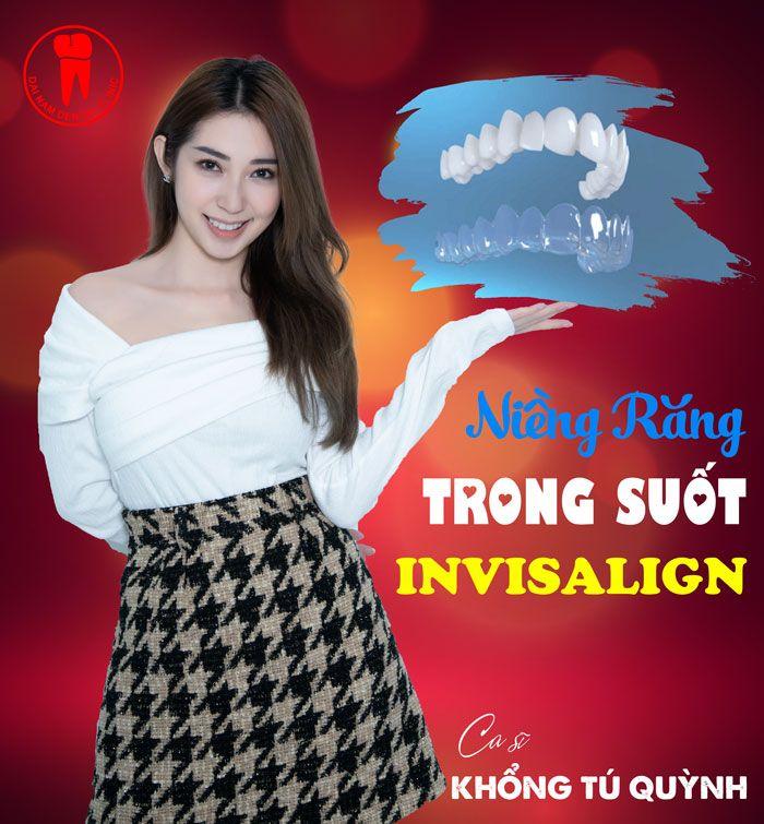Ca sĩ Khổng Tú Quỳnh sử dụng niềng răng Invisalign tại Nha khoa Đại Nam
