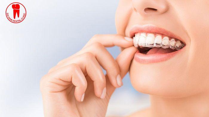 Niềng răng Invisalign mang nhiều ưu điểm vượt trội