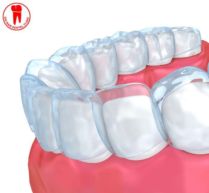 Niềng răng không mắc cài đảm bảo thẩm mỹ còn mang lại hiệu quả cao