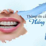 thông tin cần biết về niềng răng