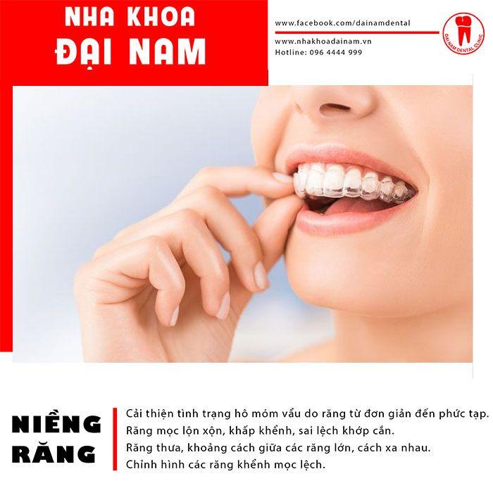 So với các loại mắc cài khác, niềng răng trong suốt mang nhiều ưu điểm vượt trội
