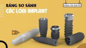 bảng so sánh các loại implant