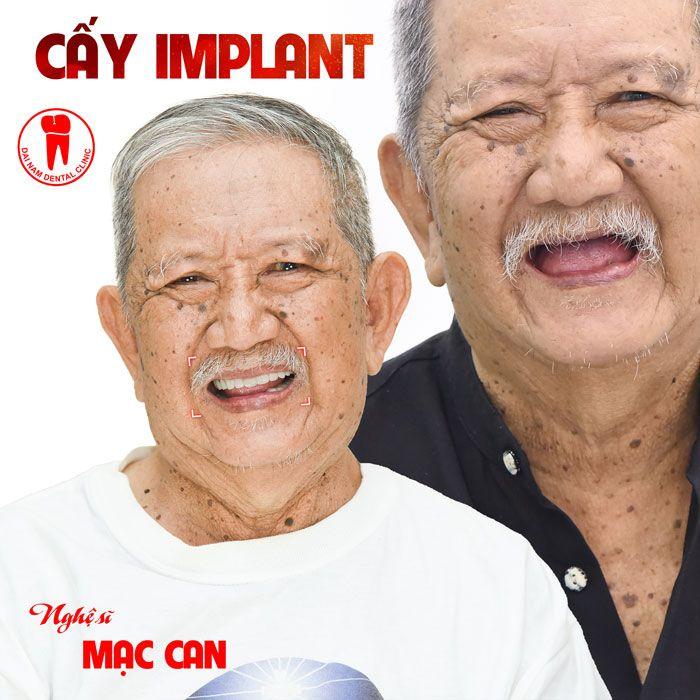 nghe si mac can cay implant tai nha khoa dai nam