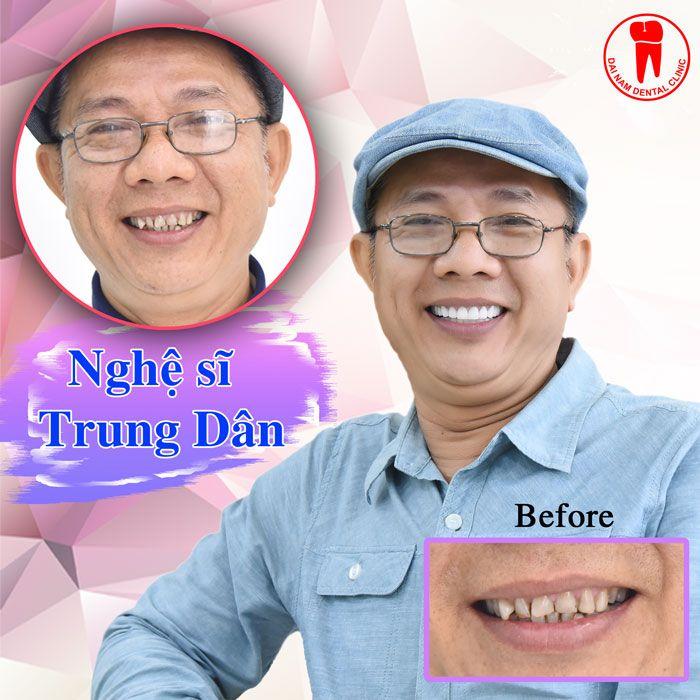 nghệ sĩ trung dân làm răng sứ tại nha khoa đại nam