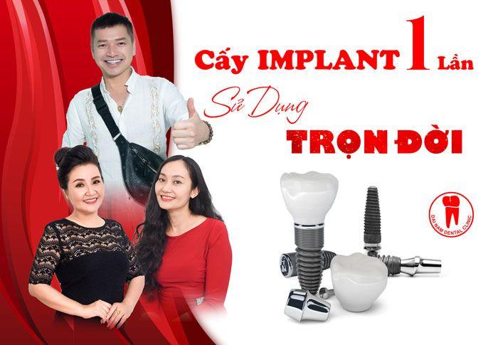 Cấy ghép răng Implant 1 lần, sử dụng trọn đời