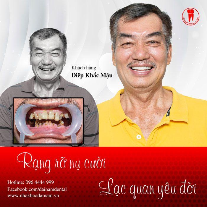 Khách hàng trồng răng Implant tại Nha khoa Đại Nam
