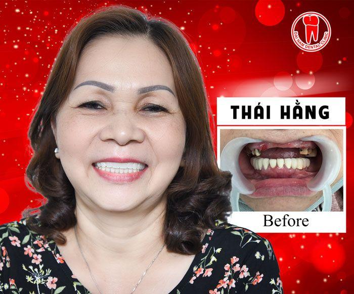 Khách hàng cấy ghép răng Implant tại Nha khoa Đại Nam