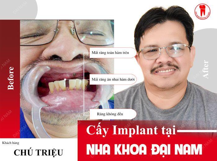 Khách hàng cắm ghép răng Implant tại Nha khoa Đại Nam