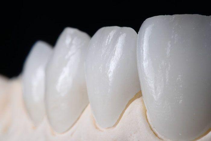 Răng toàn sứ tại Nha khoa Đại Nam
