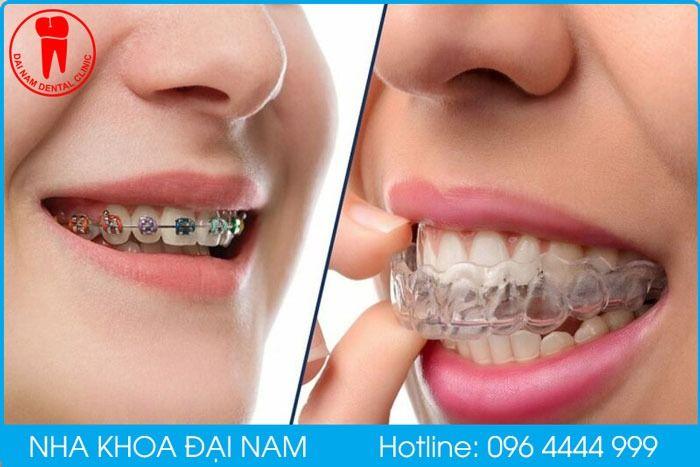 khắc phục tình trạng hóp má lệch mặt khi niềng răng