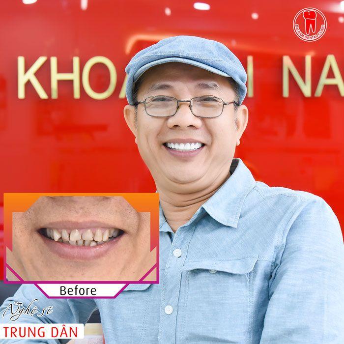 Khách hàng bọc răng sứ tại Nha khoa