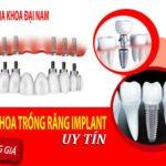 Nha khoa trồng răng implant uy tin và bảng giá