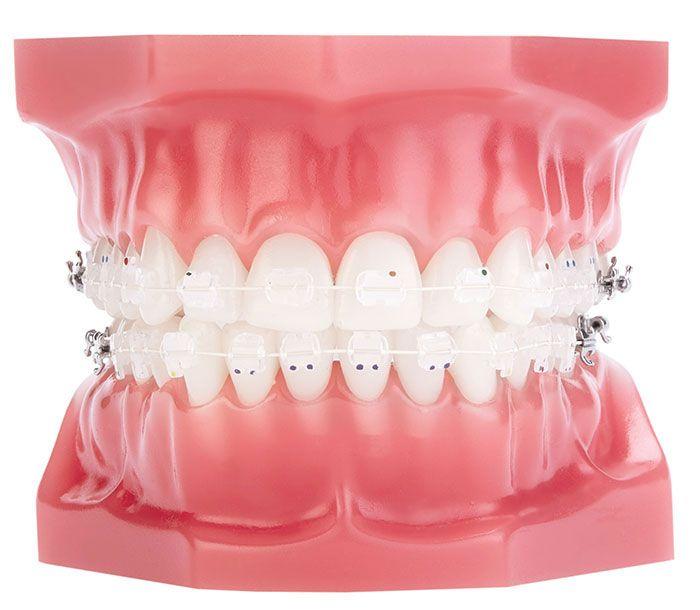 Niềng răng mắc cài sứ giúp khắc phục khuyết điểm về răng