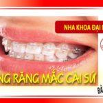 niềng răng mắc cài sứ và bảng giá