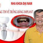 Thông tin trồng răng Implant và bảng giá