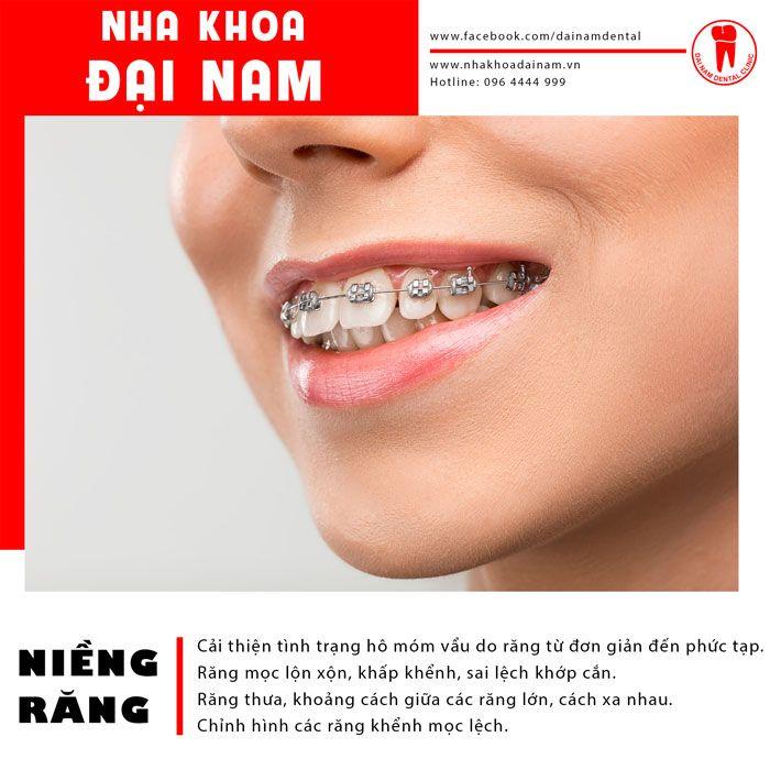 Niềng răng giúp cải thiện nhiều khuyết điểm về răng