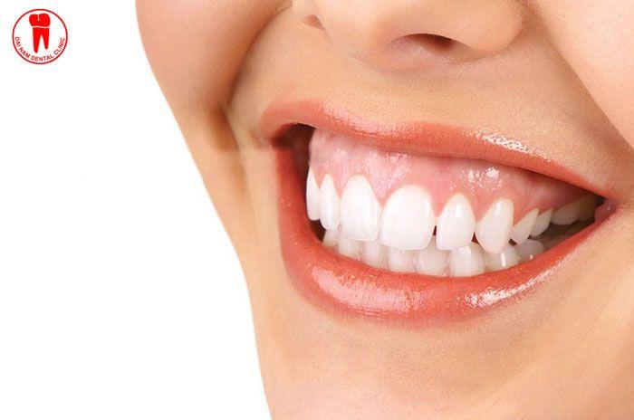 Cười hở lợi là hiện tượng phần lợi bị lộ ra trên 3mm