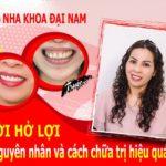 Cười hở lợi - Nguyên nhân và cách chữa trị hiệu quả