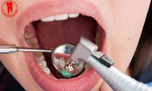 Lấy cao răng là làm sạch, đánh bay mảng bám trên răng