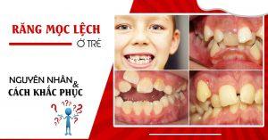 răng mọc lệch ở trẻ