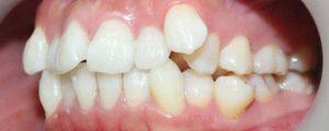 Những nguyên nhân nào làm răng trẻ bị lệch?