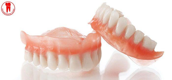 Răng tháo lắp với nhiều ưu điểm