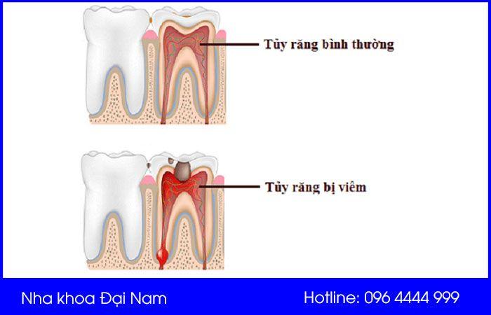 so sánh tủy răng bị viêm và tủy răng bình thường