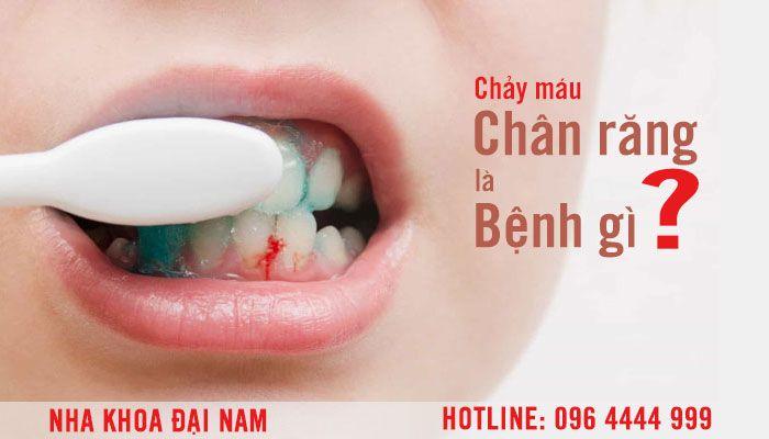 Chảy mấu chân răng là bệnh gì