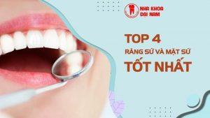 top 4 loại răng sứ, dán sứ tốt nhất
