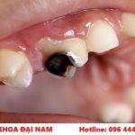 tìm hiểu về bệnh sâu răng