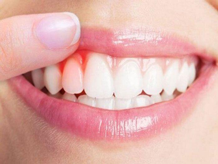 Viêm lợi là một trong những nguyên nhân gây chảy máu chân răng