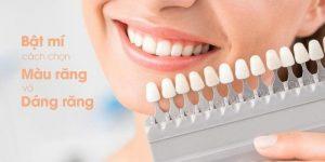 bật mí cách chọn màu răng và form răng sứ