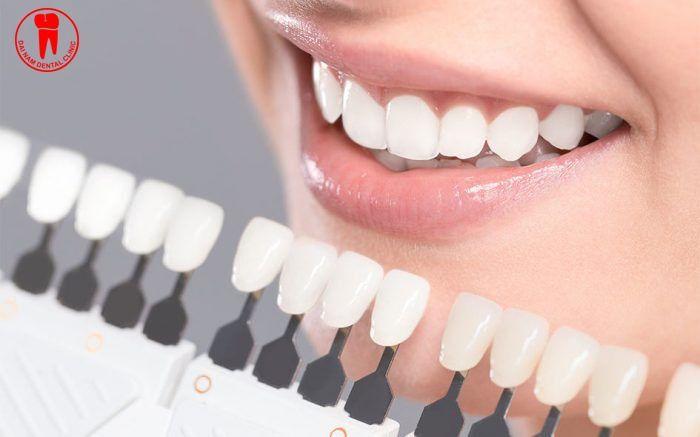 cách chọn màu răng sứ đẹp