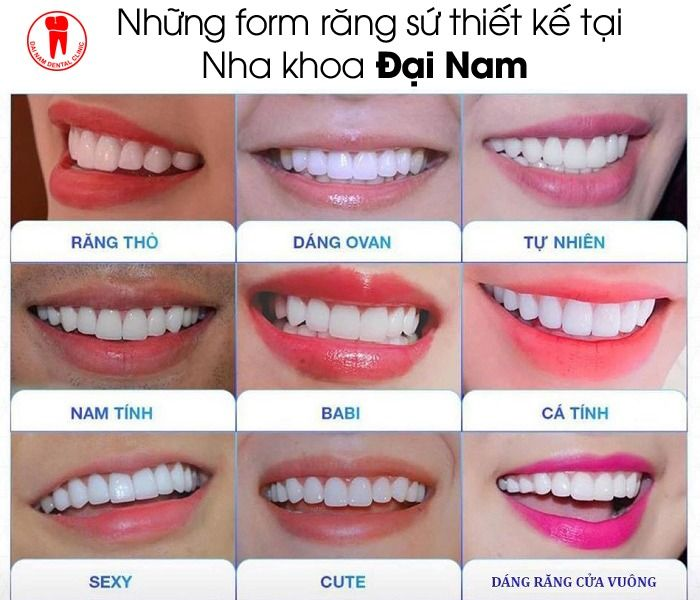 cách lựa dáng răng sứ đẹp nhất