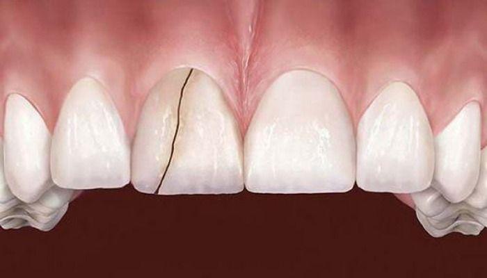 răng sứ bị nứt do làm răng sứ giá rẻ