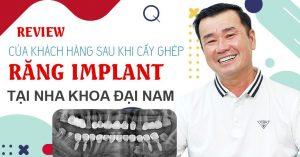 review khách hàng sau khi cấy ghép implant