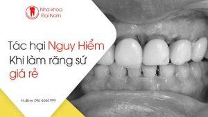 tác hại nguy hiểm khi làm răng sứ giá rẻ