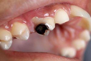6 triệu chứng của bệnh sâu răng