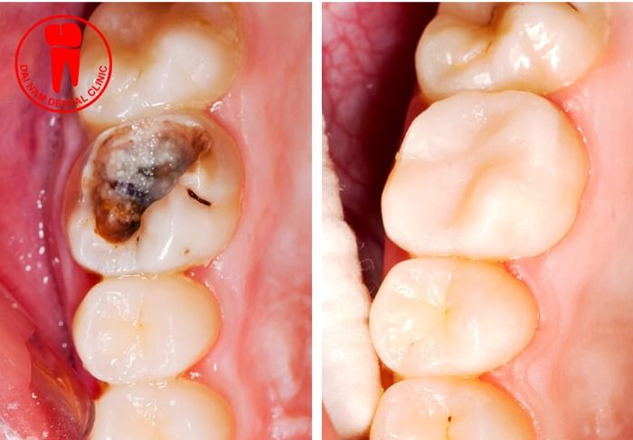 bọc sứ cho răng bị sâu