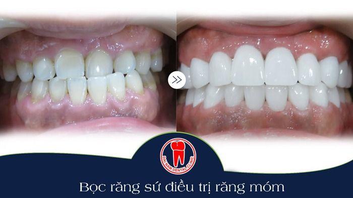 bọc răng sứ điều trị răng móm