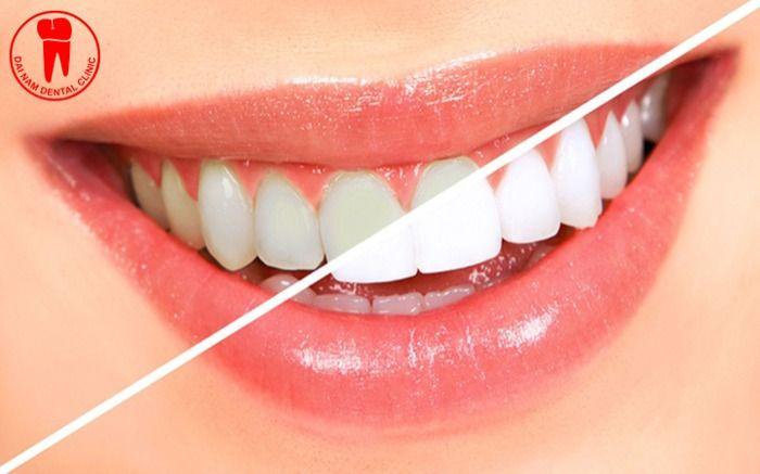 cách chăm sóc răng sau khi tẩy trăng để không bị vàng lại