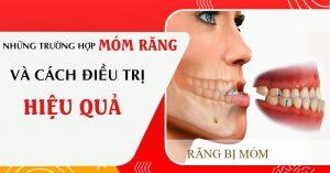 răng móm và cách điều trị hiệu quả