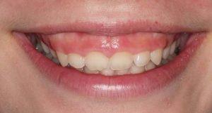 nguyên nhân răng ngắn