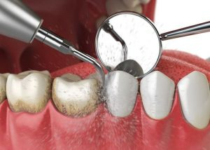 nha khoa cạo vôi răng tại quận 9