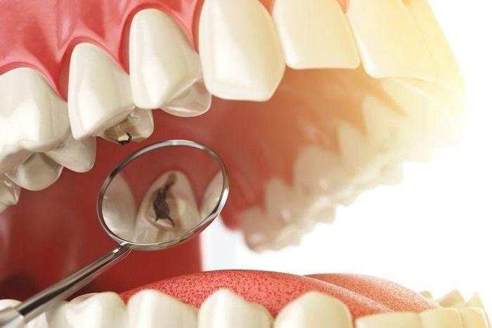 những nguyên nhân nào gây sâu răng