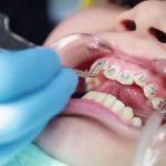 niềng răng bị quặp vào trong có được không