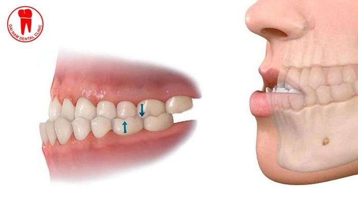 niềng răng bị quặp vào trong