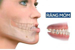 răng móm là gì