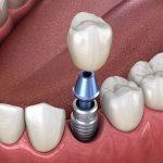 răng sứ trên implant có bị vỡ không