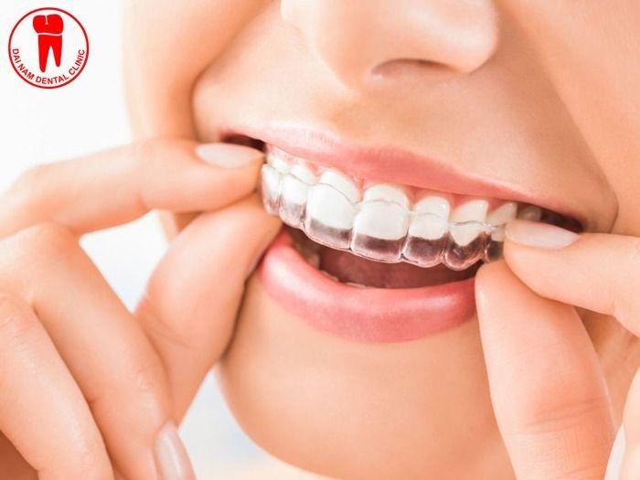 tẩy trắng răng bằng máng tại nha khoa có vàng lại không